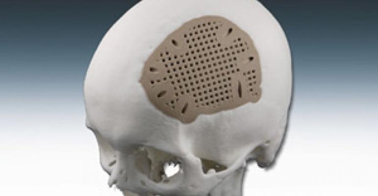 PEEK Cranial Implant Debuts at MD&M