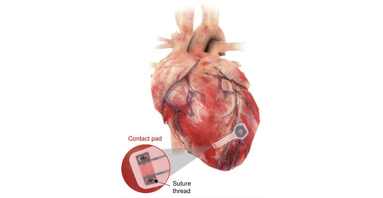 bioresorbable pacemaker